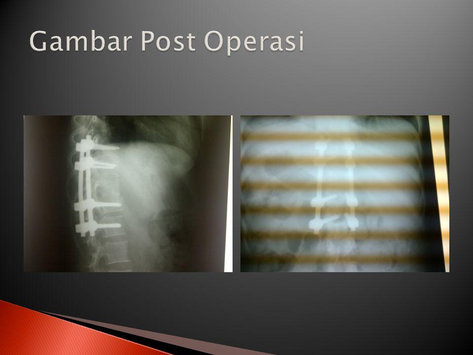 Gambar Post Operasi