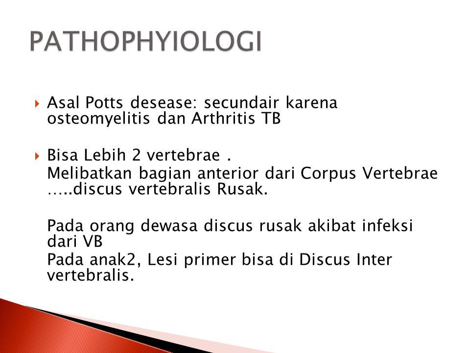 PATHOPHYIOLOGI Asal Potts desease: secundair karena osteomyelitis dan Arthritis TB. Bisa Lebih 2 vertebrae .