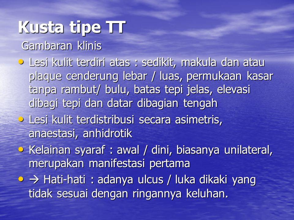 Kusta tipe TT Gambaran klinis