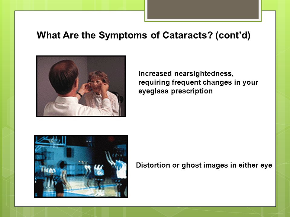 What Are the Symptoms of Cataracts (cont'd)