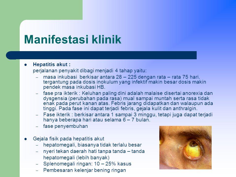 Manifestasi klinik Hepatitis akut :