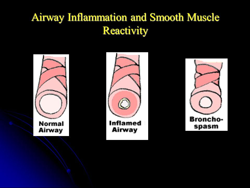 Airway Inflammation and Smooth Muscle Reactivity