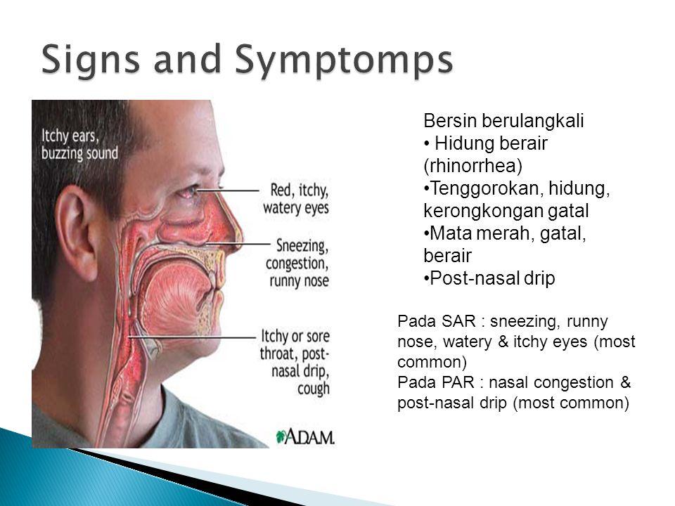 Signs and Symptomps Bersin berulangkali Hidung berair (rhinorrhea)