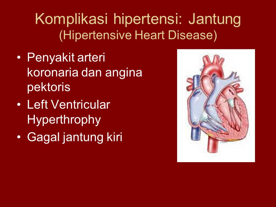 Komplikasi hipertensi: Jantung (Hipertensive Heart Disease)