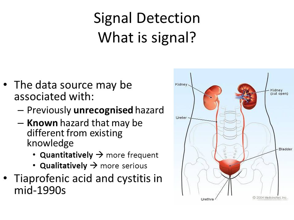 Signal Detection What is signal