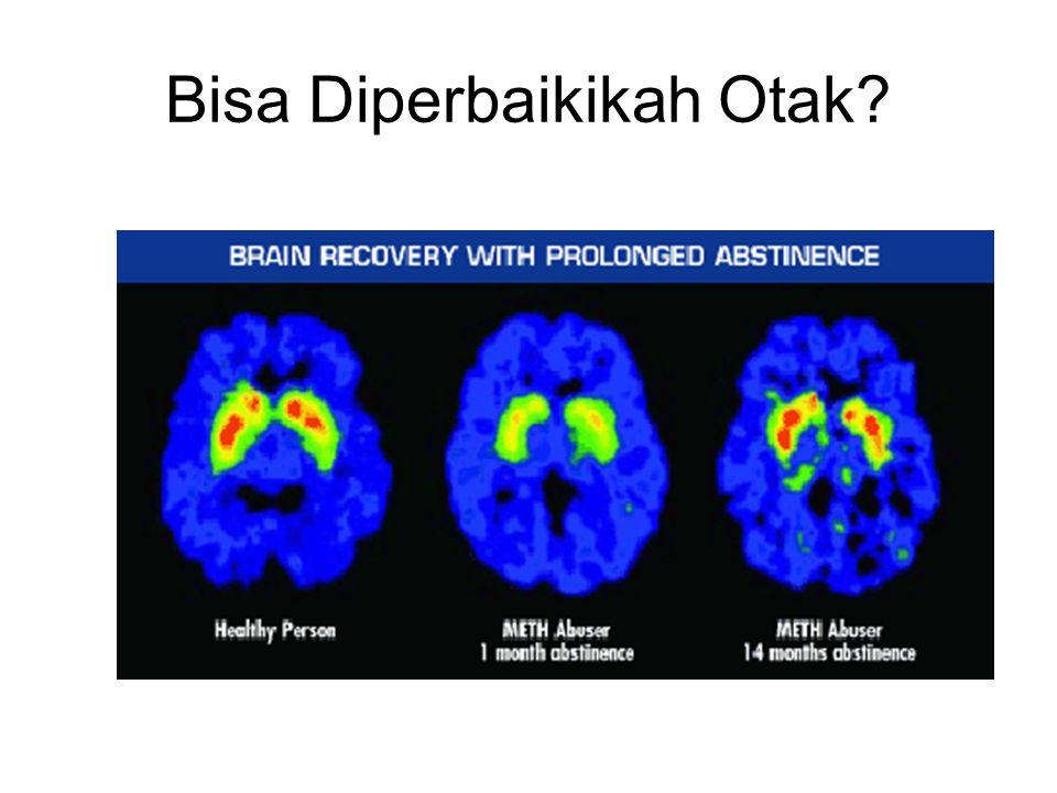 Bisa Diperbaikikah Otak