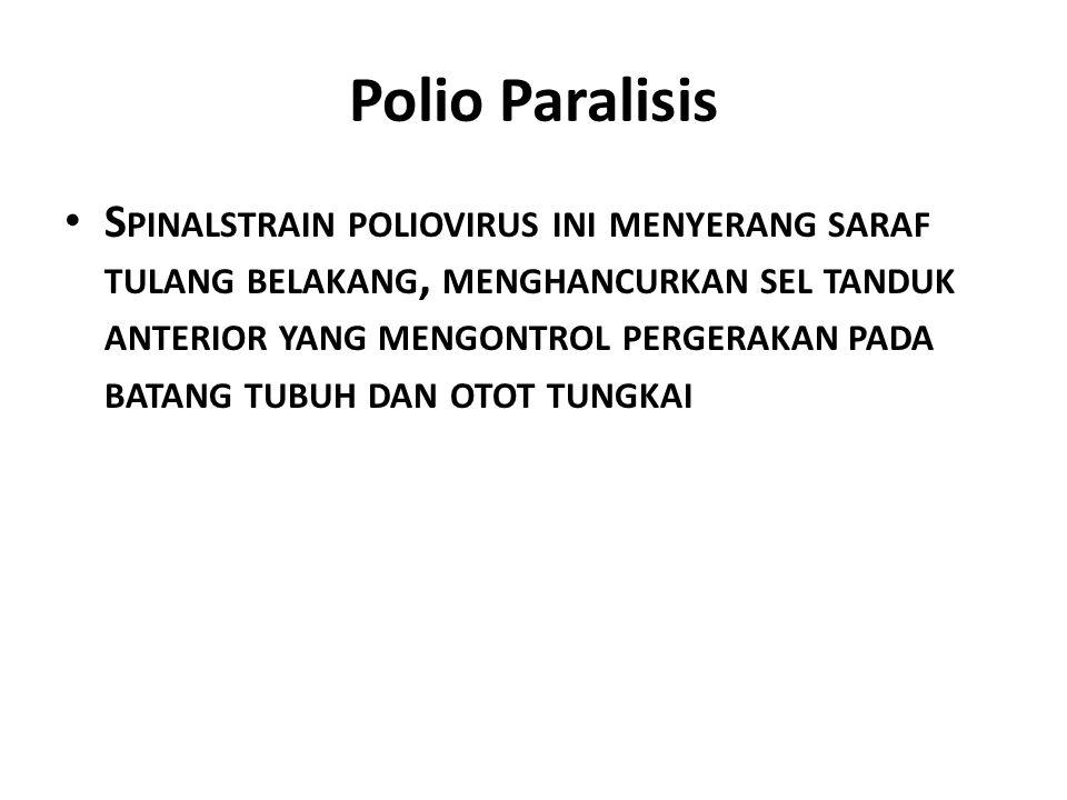 Polio Paralisis