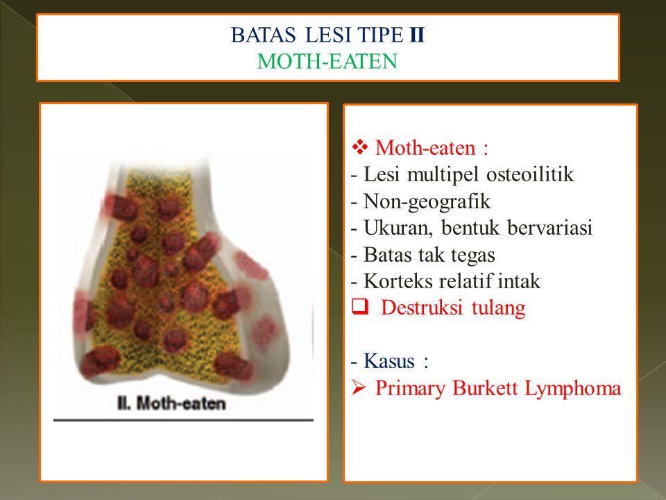 BATAS LESI TIPE II MOTH-EATEN. Moth-eaten : - Lesi multipel osteoilitik. - Non-geografik. - Ukuran, bentuk bervariasi.