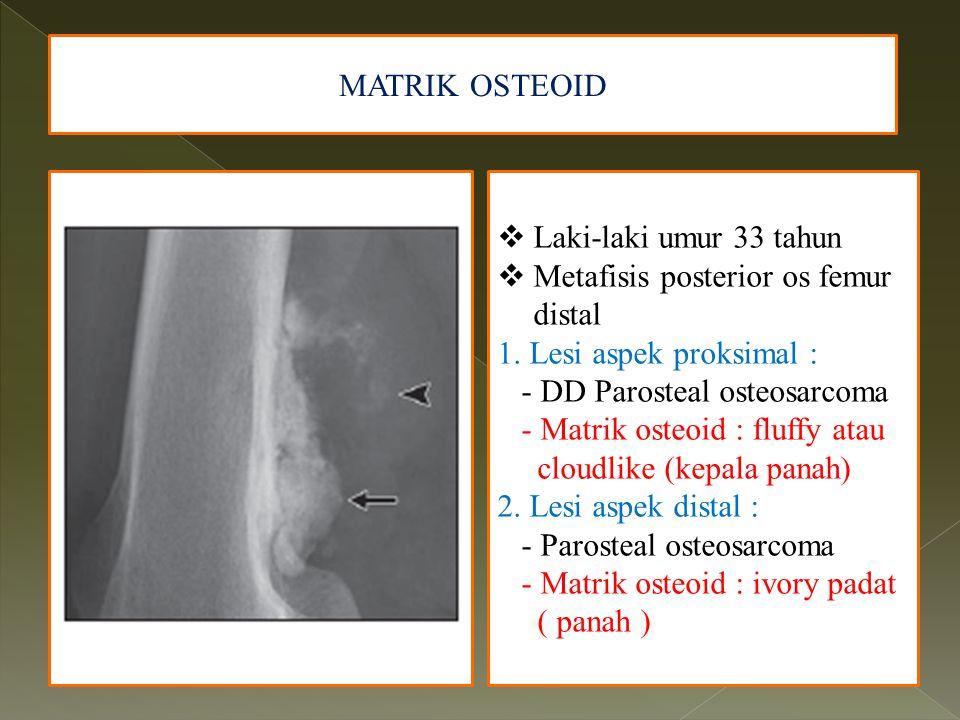 MATRIK OSTEOID Laki-laki umur 33 tahun. Metafisis posterior os femur distal. 1. Lesi aspek proksimal :