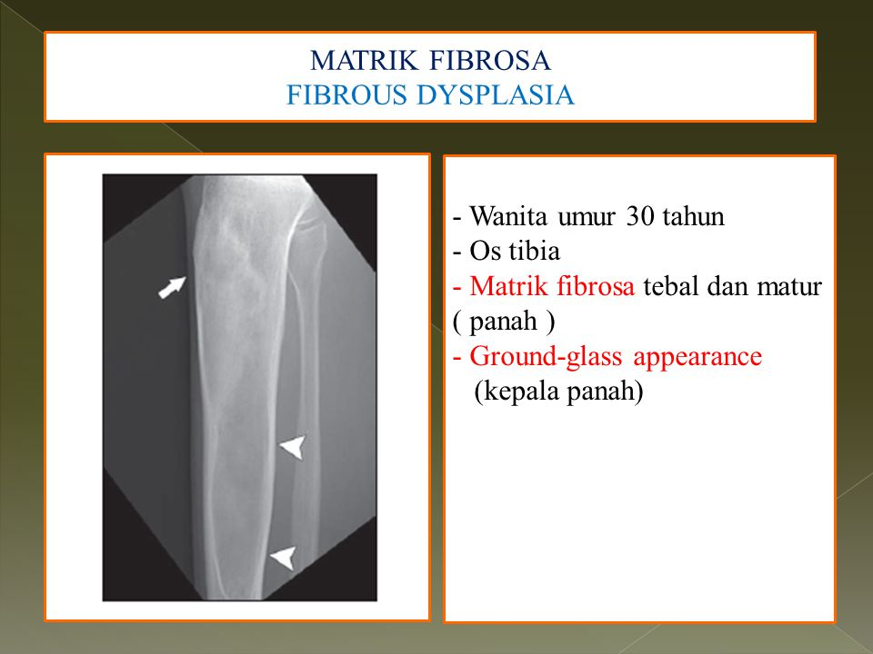 MATRIK FIBROSA FIBROUS DYSPLASIA. - Wanita umur 30 tahun. - Os tibia. - Matrik fibrosa tebal dan matur ( panah )