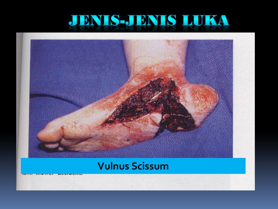 JENIS-JENIS LUKA Vulnus Scissum