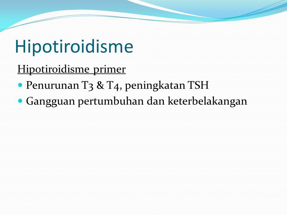 Hipotiroidisme Hipotiroidisme primer
