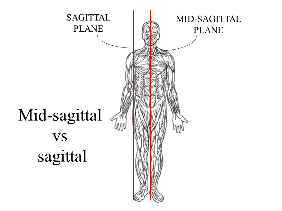 Mid-sagittal vs sagittal