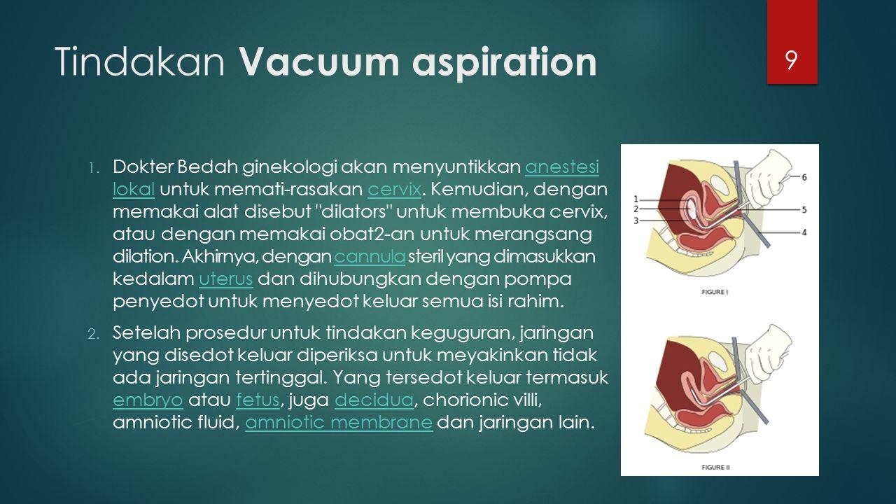 Tindakan Vacuum aspiration