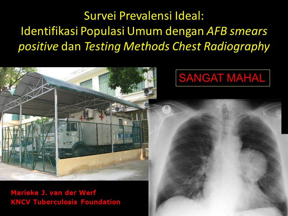 Survei Prevalensi Ideal: Identifikasi Populasi Umum dengan AFB smears positive dan Testing Methods Chest Radiography