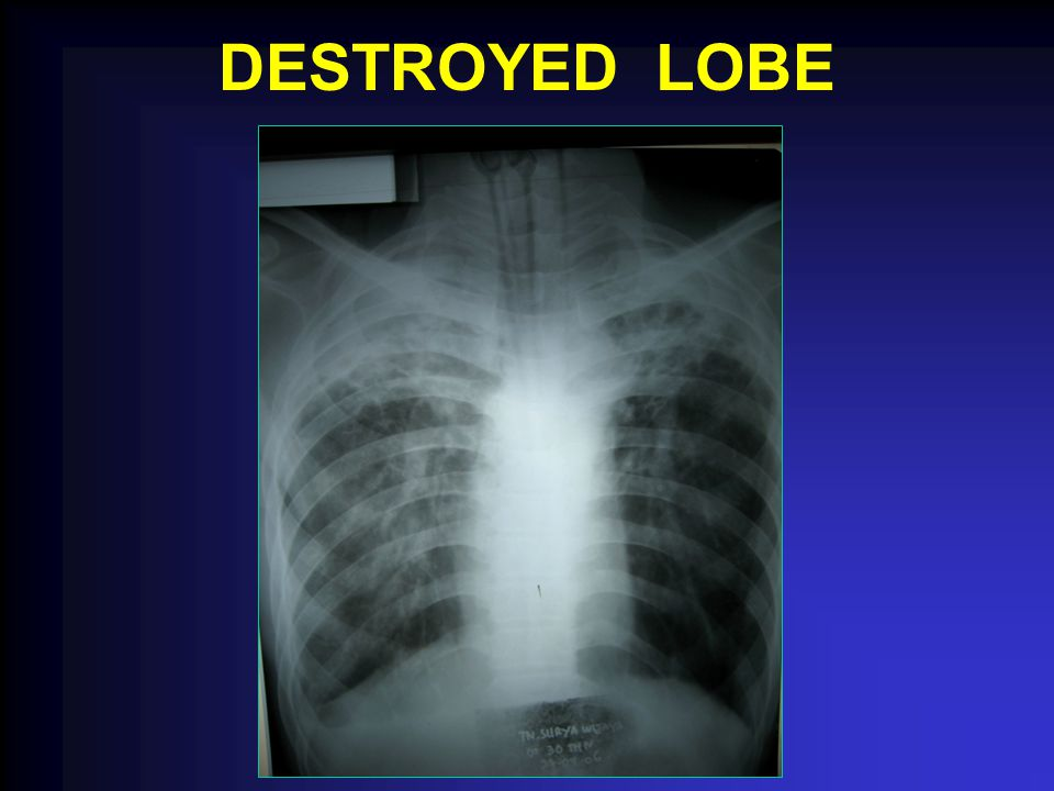 DESTROYED LOBE