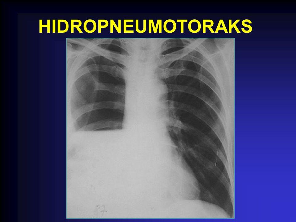 HIDROPNEUMOTORAKS
