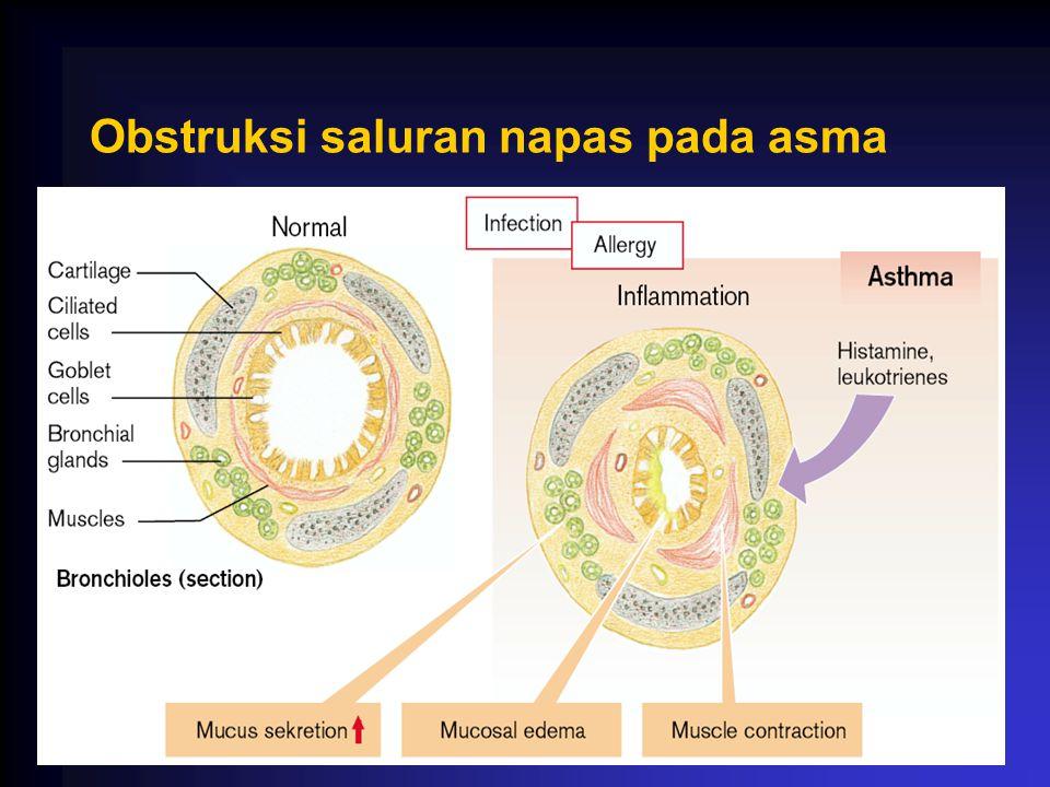 Obstruksi saluran napas pada asma