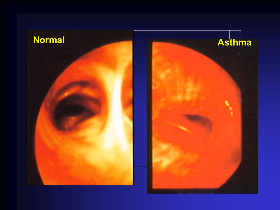 Normal Asthma Asthma is a chronic inflammatory disorder of the airways