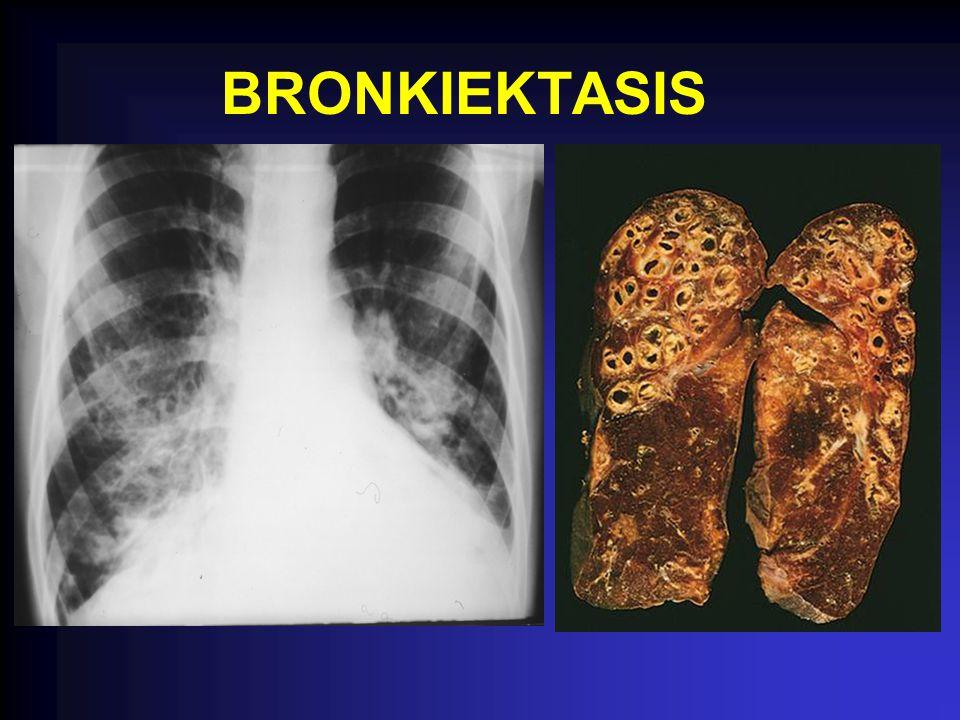 BRONKIEKTASIS