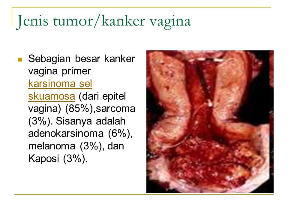 Jenis tumor/kanker vagina
