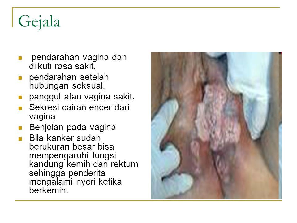 Gejala pendarahan vagina dan diikuti rasa sakit,