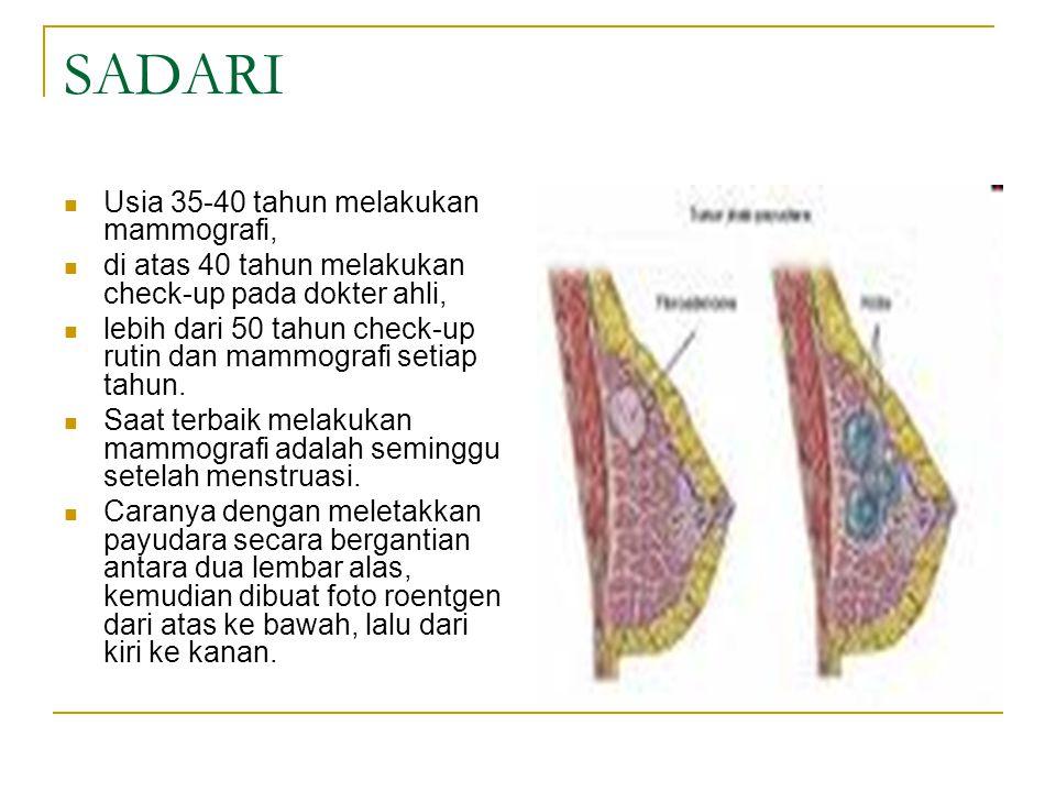 SADARI Usia 35-40 tahun melakukan mammografi,
