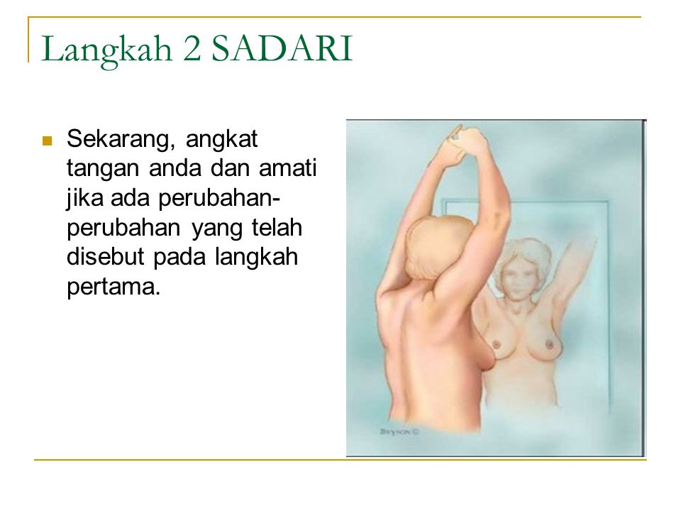 Langkah 2 SADARI Sekarang, angkat tangan anda dan amati jika ada perubahan-perubahan yang telah disebut pada langkah pertama.