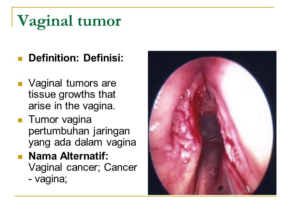 Vaginal tumor Definition: Definisi: