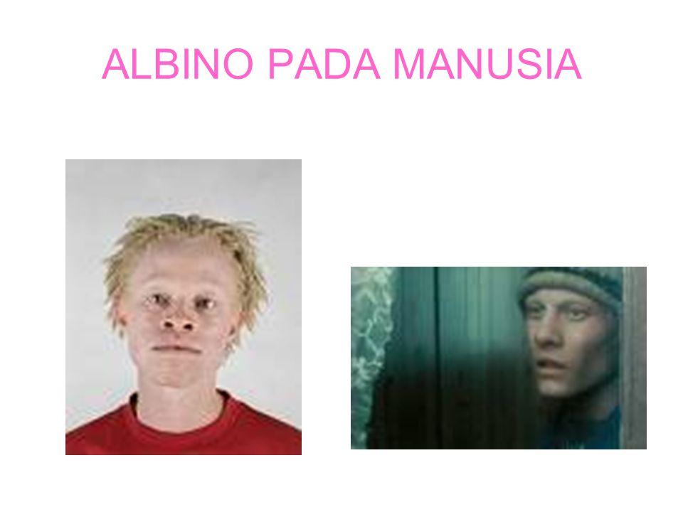 ALBINO PADA MANUSIA