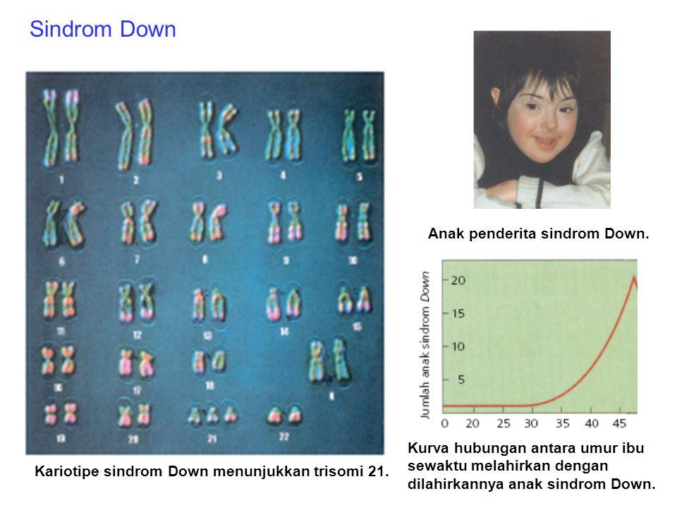 Sindrom Down Anak penderita sindrom Down.