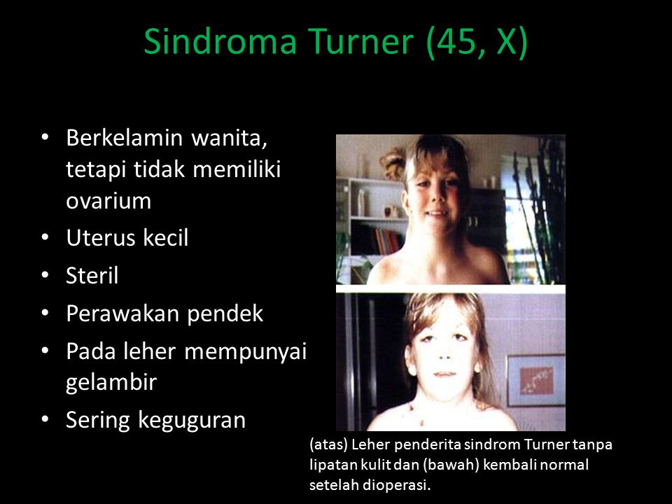 Sindroma Turner (45, X) Berkelamin wanita, tetapi tidak memiliki ovarium. Uterus kecil. Steril. Perawakan pendek.