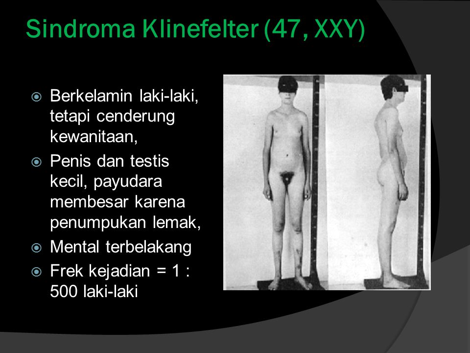 Sindroma Klinefelter (47, XXY)