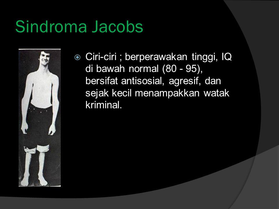 Sindroma Jacobs