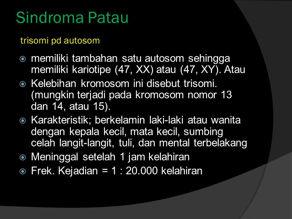 Sindroma Patau trisomi pd autosom