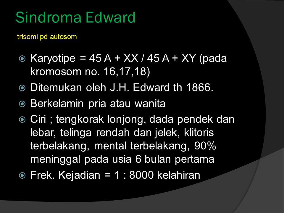 Sindroma Edward trisomi pd autosom. Karyotipe = 45 A + XX / 45 A + XY (pada kromosom no. 16,17,18)