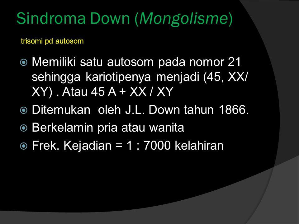 Sindroma Down (Mongolisme)