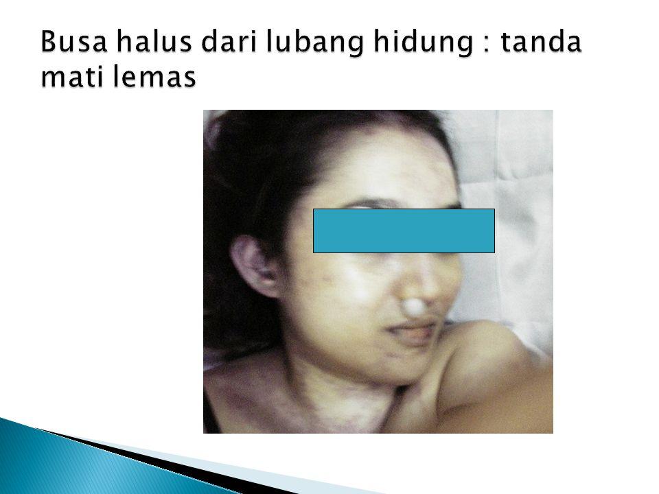 Busa halus dari lubang hidung : tanda mati lemas