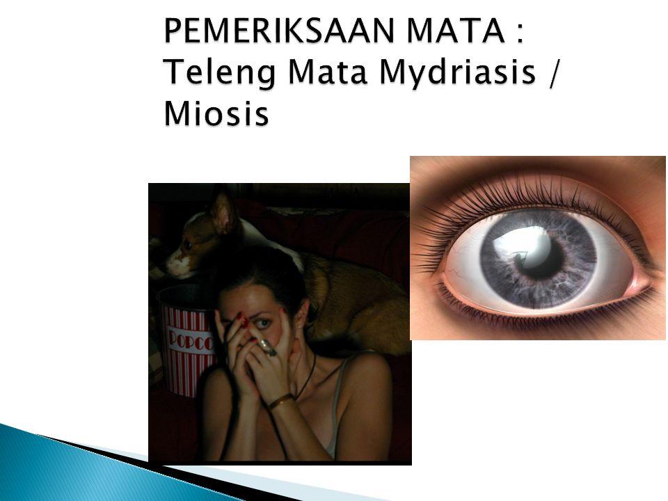 PEMERIKSAAN MATA : Teleng Mata Mydriasis / Miosis