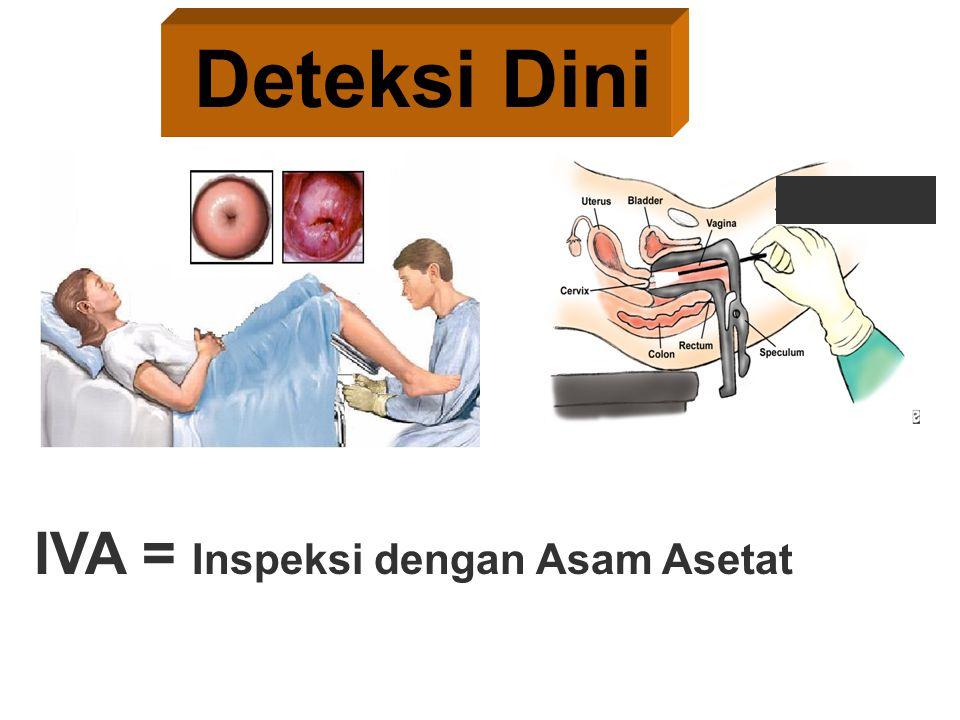 Deteksi Dini IVA = Inspeksi dengan Asam Asetat 25