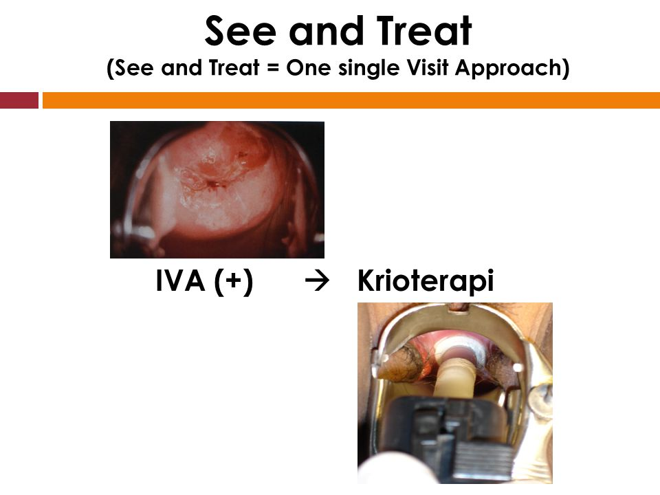 See and Treat (See and Treat = One single Visit Approach)