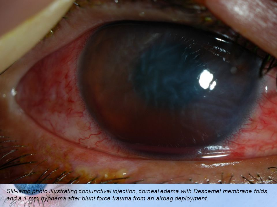 Slit-lamp photo illustrating conjunctival injection, corneal edema with Descemet membrane folds, and a 1 mm hyphema after blunt force trauma from an airbag deployment.