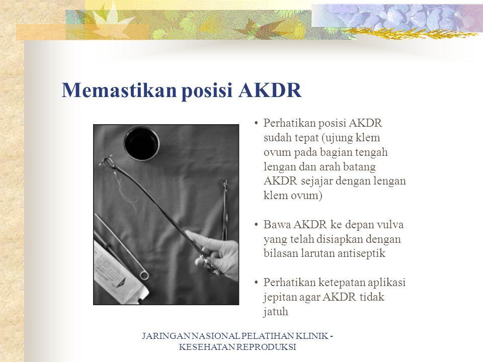 Memastikan posisi AKDR