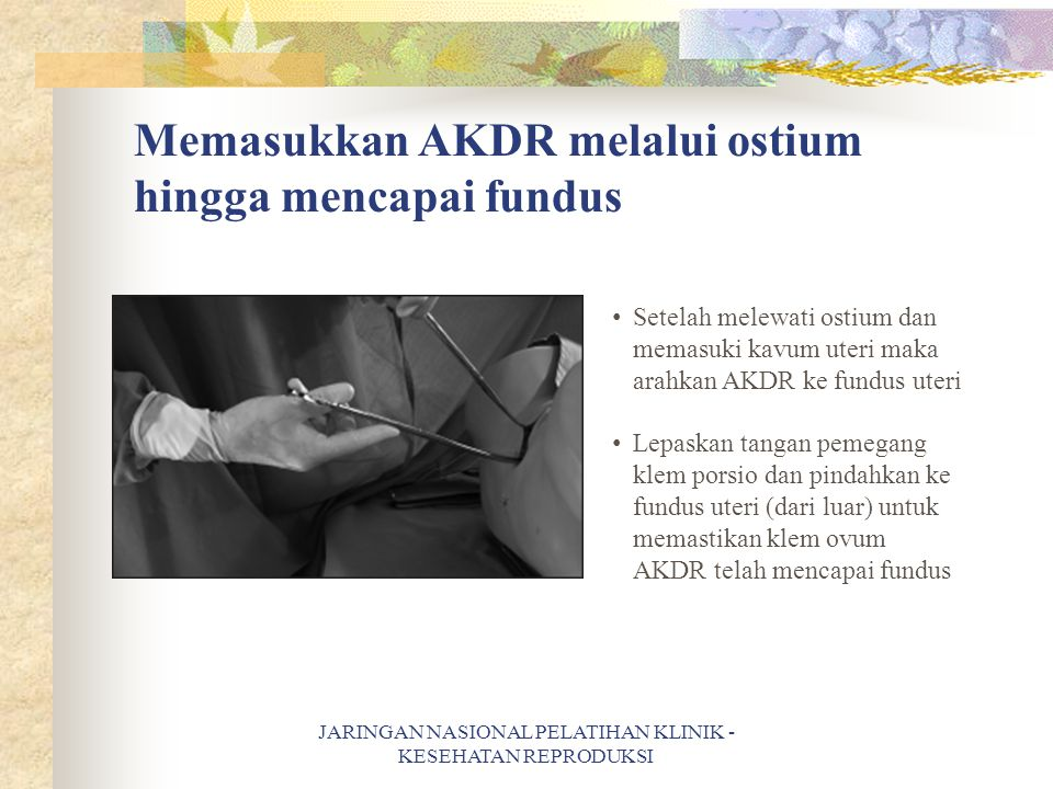 Memasukkan AKDR melalui ostium hingga mencapai fundus