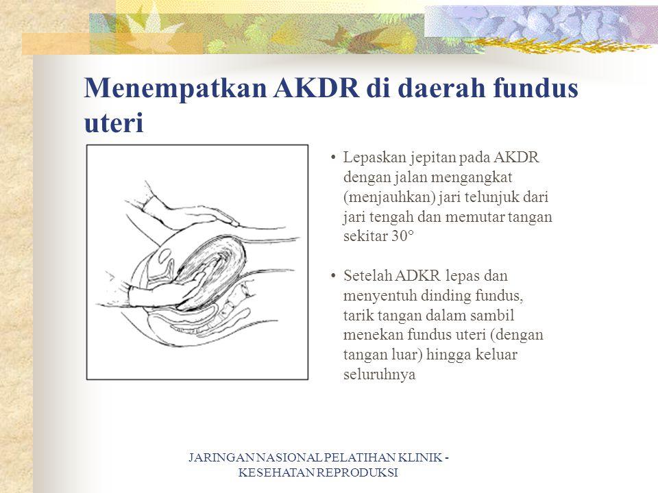 Menempatkan AKDR di daerah fundus uteri