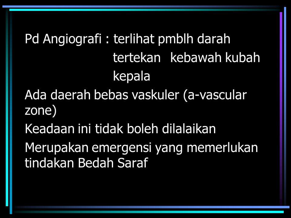 Pd Angiografi : terlihat pmblh darah