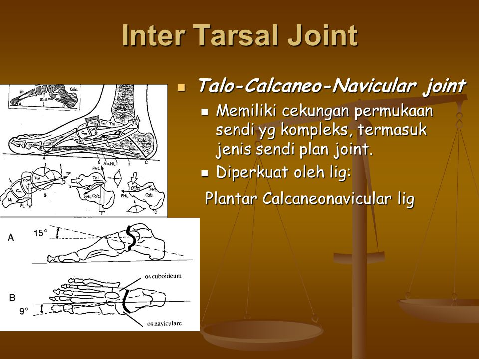 Inter Tarsal Joint Talo-Calcaneo-Navicular joint