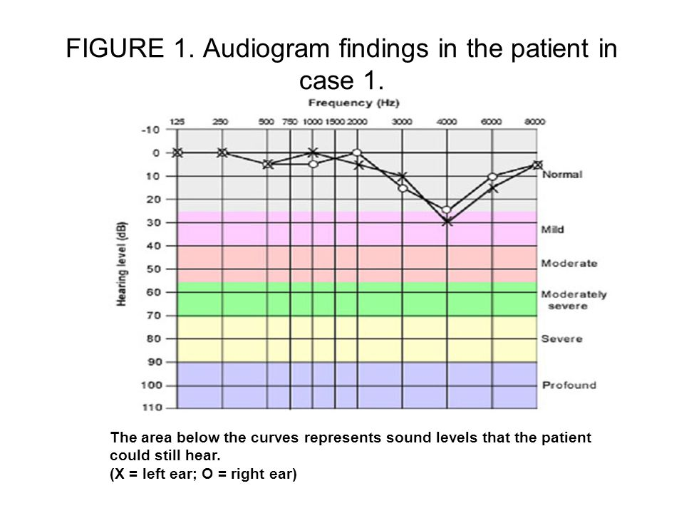 FIGURE 1. Audiogram findings in the patient in case 1.