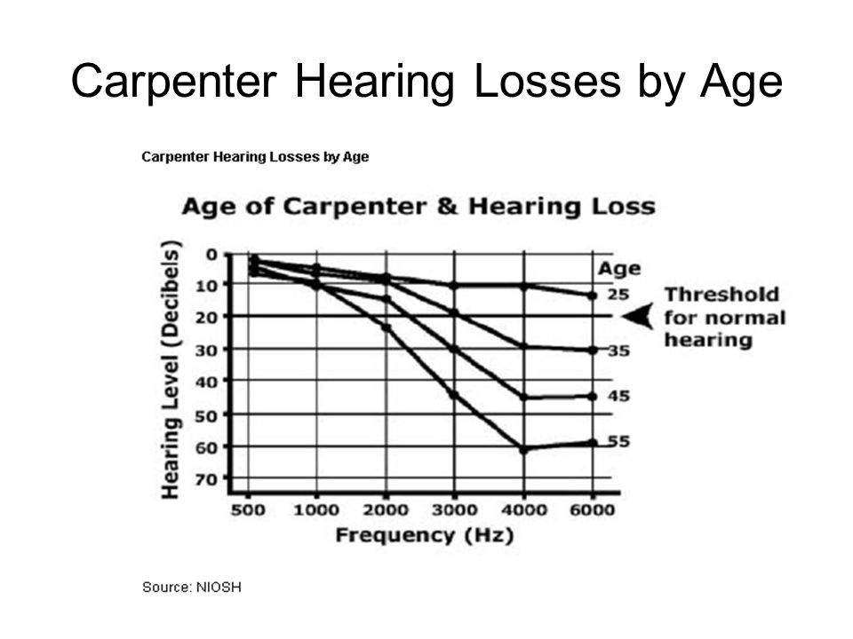Carpenter Hearing Losses by Age