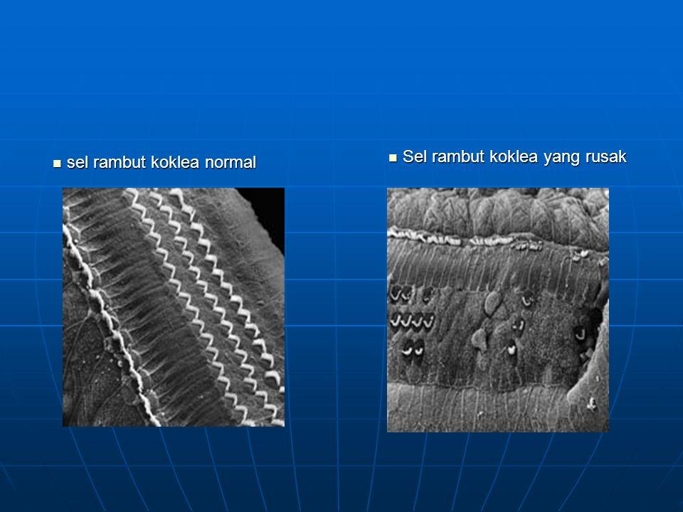 Sel rambut koklea yang rusak